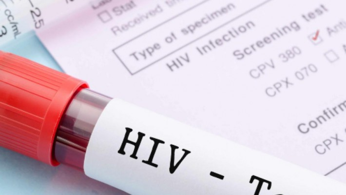 Un efficace trattamento dell'HIV: eliminata la trasmissione sessuale