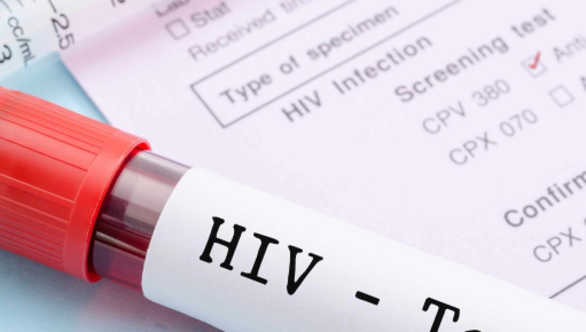 Un efficacie trattamento dell'HIV: eliminata la trasmissione sessuale